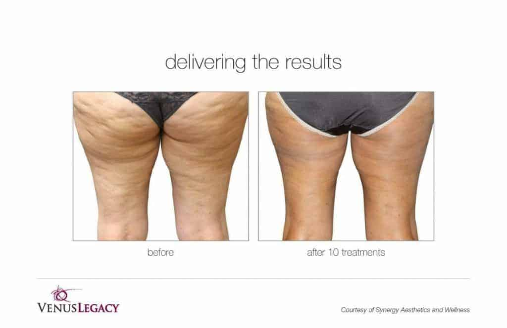 Before and after image of back thighs with cellulite vs. no cellulite