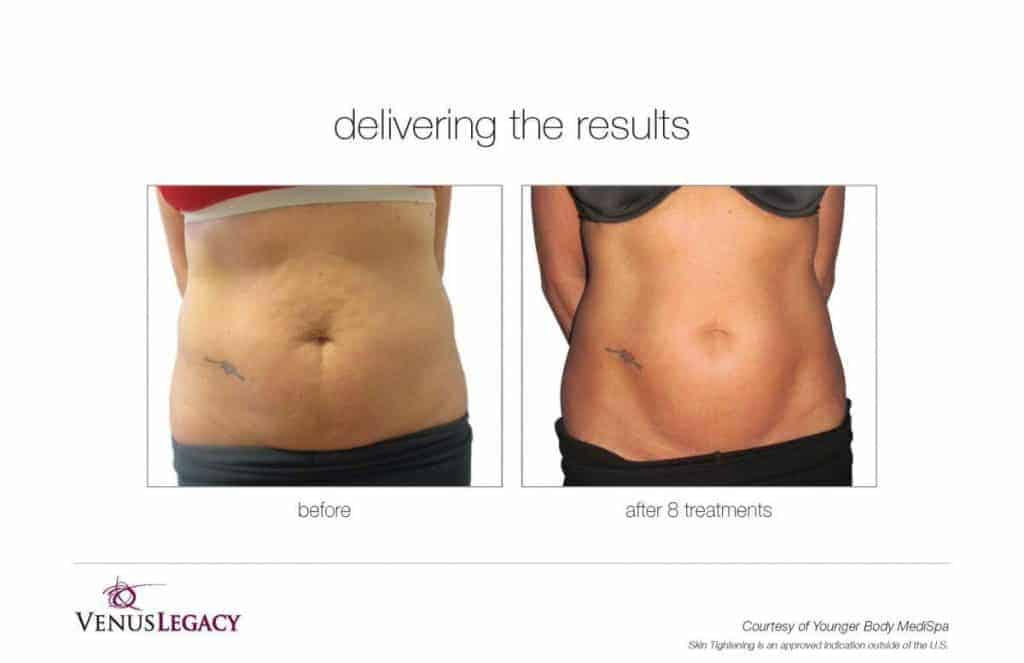 Before and after image of belly fat reduction