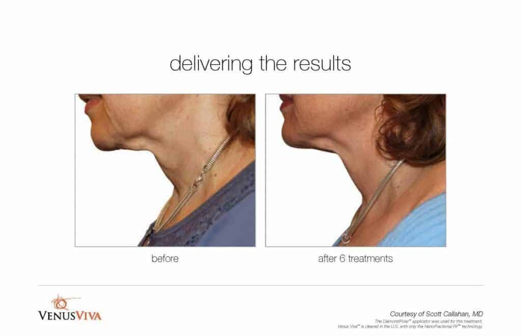 Before and after image of neck skin resurfacing for skin tightening