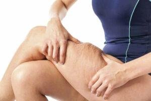 Photo of visible cellulite on a lady's thighs
