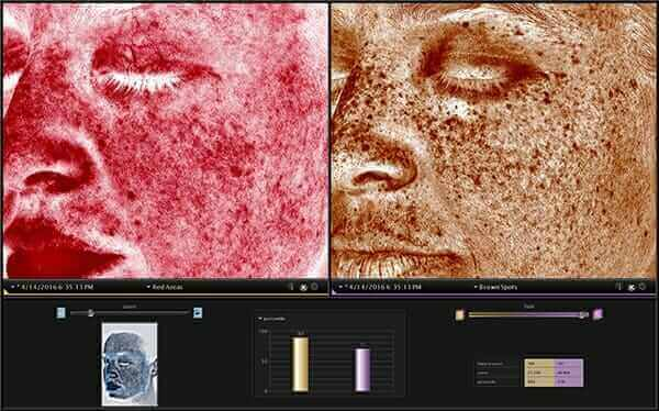Visia Skin complexion images